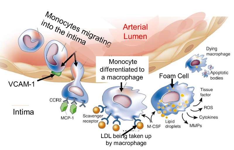 role of inflammation in atherosclerosis The role of inflammation in atherosclerosis boamponsem 1,2 , ag,  boamponsem 3 , lk 1department of biotechnology, school of biological  sciences, the.