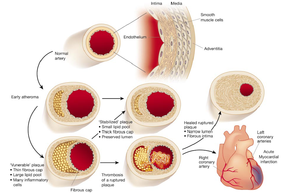 relationship between hyperlipidaemia and atherosclerosis arteriosclerosis