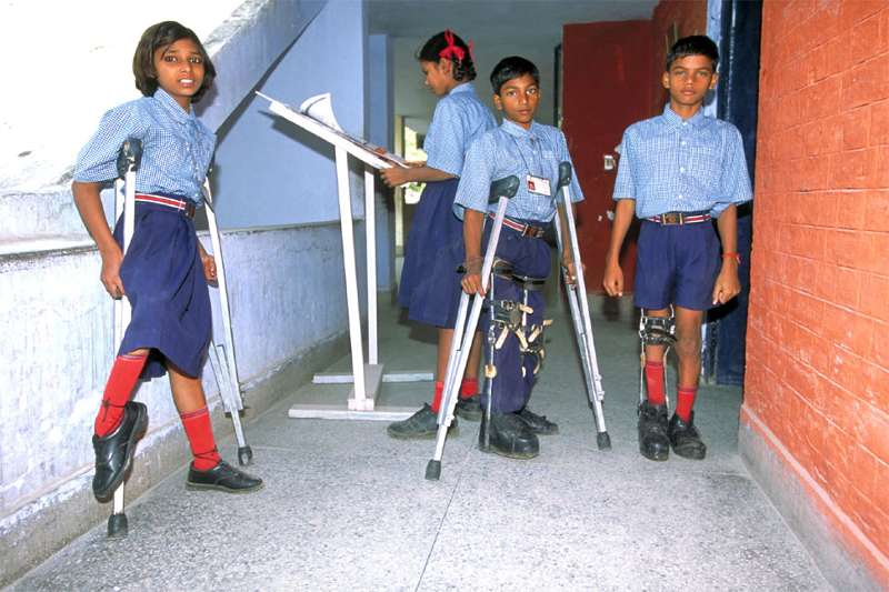 The Symptoms and Progression of Polio Infection
