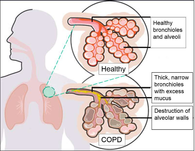 Chronic Obstructive Pulmonary Disease (COPD) 1bf6d2c18e