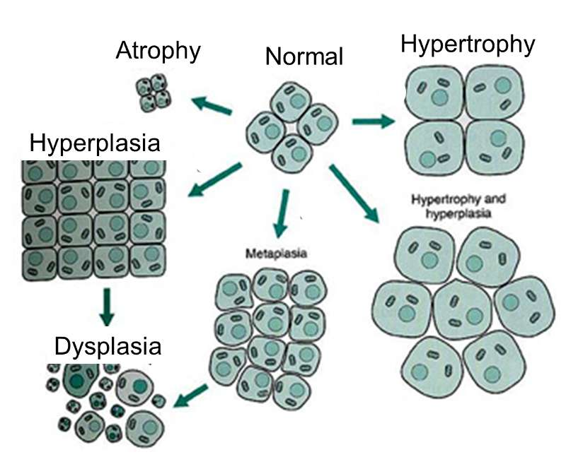 evolution of a cancer  hyperplasia diagram #12
