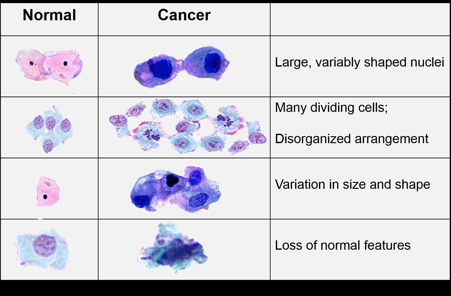 cancer biology benign tumors