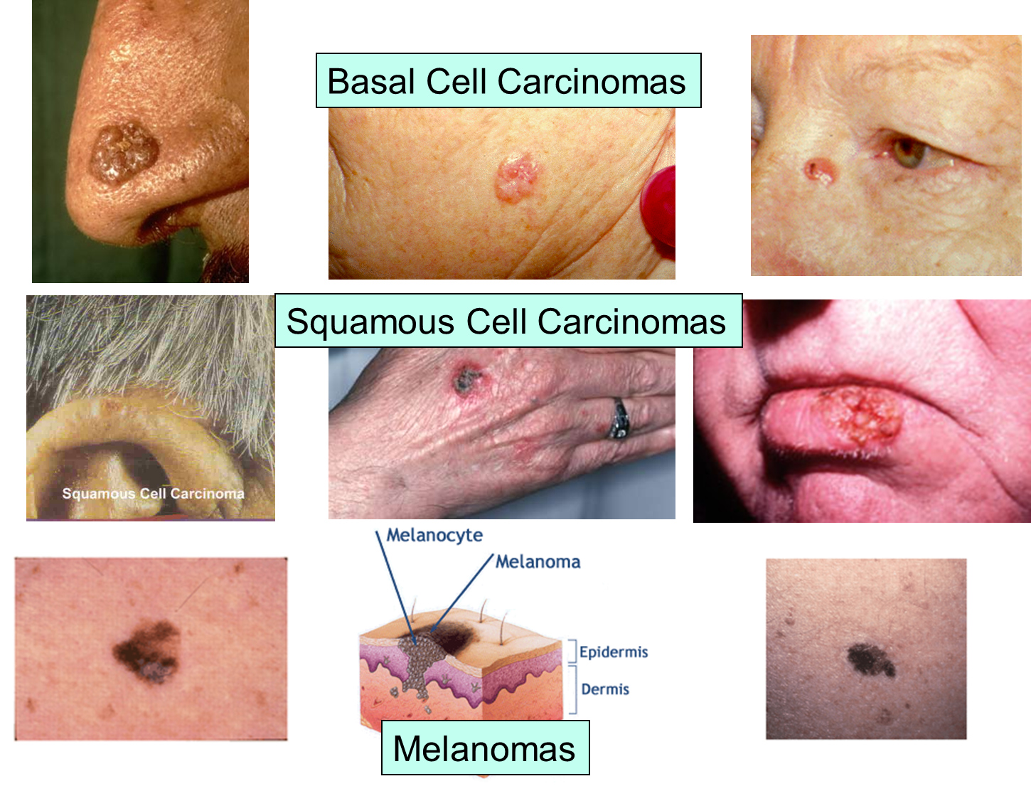 biology skin cancer 13062018  seminars in cancer biology is a review journal dedicated to keeping scientists informed of developments in the field of molecular oncology on a topic.